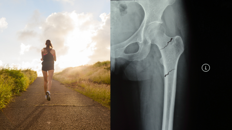 Dont miss femoral stress fractures in the female runner